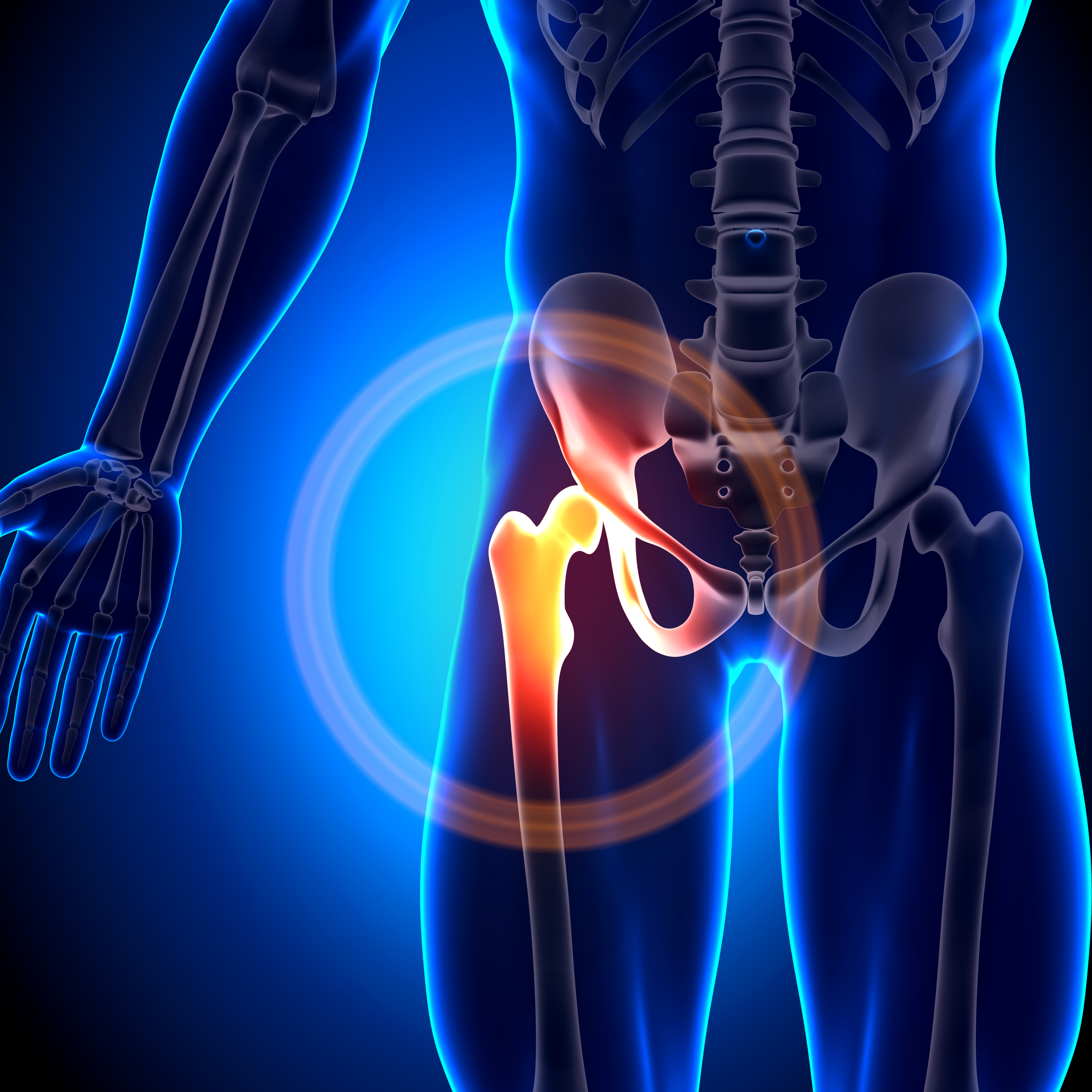 Hip Surgery Joint Replacement Process